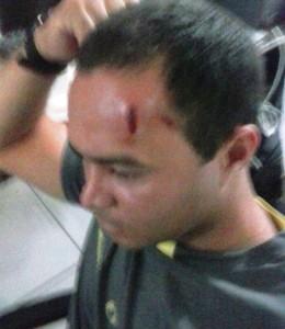 Agente Funase ferido